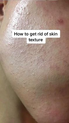 Homemade Skin Care, Diy Skin Care, Skin Care Tips, Clear Skin Face, Clear Skin Tips, Face Skin, Skin Care Routine Steps, Skin Routine, Beauty Tips For Glowing Skin