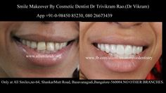 .  Dr Trivikram (Dr Vikram),an expert cosmetic dentist in Bangalore offers smile makeovers. This treatment is not a surgery and your teeth can be straightened without braces/orthodontic treatment and can be finished in just 5-7 days. Read more at http://www.allsmilesdc.org/cosmetic-dentistry-faqs/ ALLSMILES - located only at - N0.64, SHANKAR MUTT MAIN ROAD BASAVANAGUDI.(no other branches). BANGALORE-560004.KARNATAKA. INDIA.   PH +91-0- 98450 85230.080-26673439.