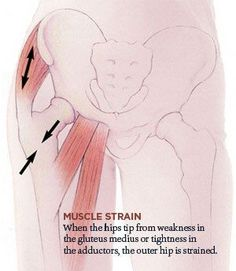 Muscle Strain, Leiden, Hip Pain Relief, Bursitis Hip, Hip Flexors, Si Joint, Psoas Muscle, Hip Muscles, Physical Therapy