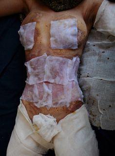 Paula Bronstein. The use of acid in Afghanistan against females.