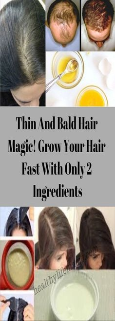Thin And Bald Hair Magic! Grow Your Hair Fast With Only 2 Ingredients | Healthy Life Magic