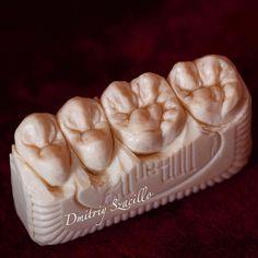 Мыльные зубы #стоматология #dentistry