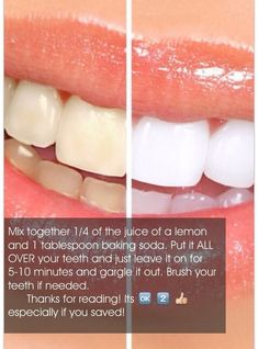 This will help whiten your teeth repeat as needed