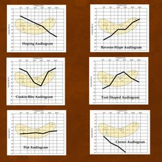The Best Hearing Loss Simulations: Understanding Audiograms and the Impact of the Speech Banana Deaf Education Activities, Speech Therapy Activities, Teacher Resources, Speech Language Pathology, Speech And Language, Sign Language, Speech And Hearing, Hearing Aids, Hearing Impairment