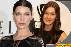 Bella Hadid Plastic Surgery Rumors Before And After Nose, Lips Photos