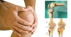 Arthrosis Of The Knee: Causes, Symptoms, Treatment! » Healthy Life Healthy Food