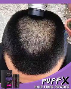 Bald Spot, Fuller Hair, Hairline, Hair Looks, Braided Hairstyles, Black Hair, Hair Care, Fiber, Hair Beauty