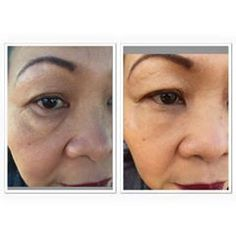 INSTANTLY AGELESS Under Eye Bags, Ageless Beauty, Healthy Aging, Body Systems, Anti Aging, Skin Care, Nobel Prize, Success, Bottle