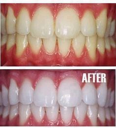 HOW TO MAKE YOUR TEETH *SNOW WHITE* -Put a tiny bit of toothpaste into a small cup, mix in one teaspoon baking soda plus one teaspoon of hydrogen peroxide, and half a teaspoon water.  Thoroughly mix then brush your teeth for two minutes.  Remember to do it once a week until you have reached the results you want. Once your teeth are good and white, limit yourself to using the whitening treatment once every month or tw
