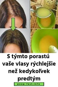 Zaskočte všetkých lekárov: S týmto porastú vaše vlasy rýchlejšie než kedykoľvek predtým Beauty Recipe, Aloe Vera, Hair Beauty, Healthy, Syrup, Cute Hair