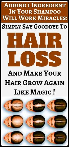 Add This Ingredient In Your Shampoo And . Add This Ingredient In Your Shampoo And . Add This Ingredient In Your Shampoo And Stop Hair Baking Soda Shampoo, Baking Soda Hair, Coconut Health Benefits, Stop Hair Loss, Hair Loss Remedies, Healthy Tips, Healthy Drinks, Stay Healthy, Healthy Recipes
