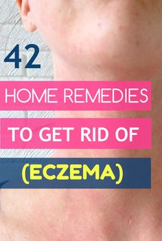 Home Remedy Hacks • 42 Proven Home Remedies to Get Rid of Eczema