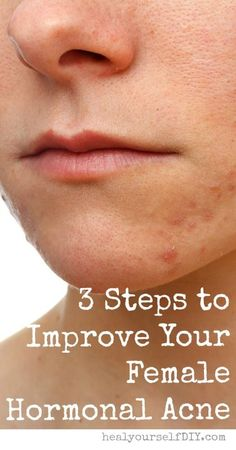 3 Steps to Improve Hormonal Acne | www.healyourselfdiy.com