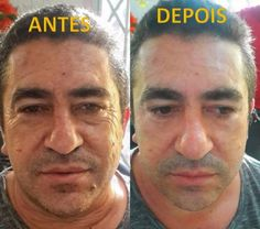 homem Pure Beauty, Anti Aging, Skin Care, Pure Products, Dr Daniel, Join, Instagram, Face Wrinkles, Strengthening Nails