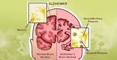 Как предотвратить болезнь Альцгеймера: 10 вещей, которые вам нужно сделать
