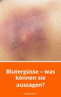 Blutergüsse – was können sie aussagen? | eatsmarter.de