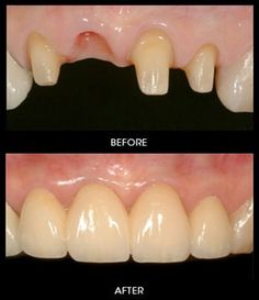 Dentaltown - This is a porcelain bridge replacing a missing front tooth.