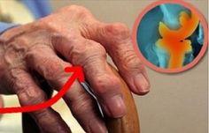 Padre Beno J. Schorr estava com 61 anos e quase paralítico.O processo começou com pontadas agudas na região lombar, diagnosticadas como um bico de papagaio, incurável segundo o médico.