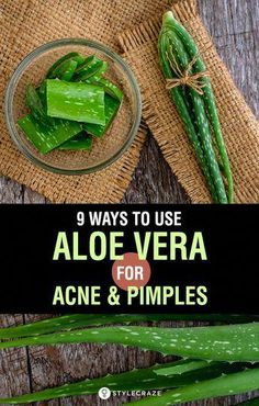 Aloe Vera For Acne: 9 Ways To Use Aloe Vera For Acne And Pimples: Almost all of us get acne at some point in our lives. But did you know that you could use aloe vera to heal acne? The extract of aloe vera is often used to heal minor rashes, cuts, and sunburns – and is equally effective for acne. #Skin #SkinCare #BeautyTips #Remedies #AloeVeraForSkin Acne And Pimples, Acne Scars, Acne Skin, Body Acne, Aloe Vera For Skin, Aloe For Acne, Beauty Hacks For Teens, Good Health Tips, Homemade Skin Care
