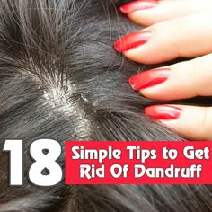 18 Simple Tips to Get Rid Of Dandruff