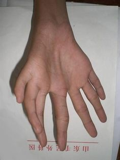 Mid ray duplication polydactyly