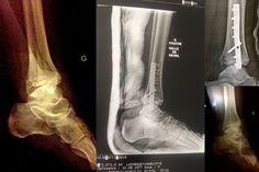 jambe cassée- evolution, radio- cicatrice- blog charlotteblabla