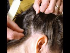 How To Get Rid Of Lice Quickly