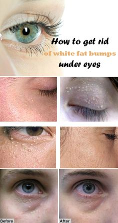 How to get rid of white fat bumps under eyes (Milia)