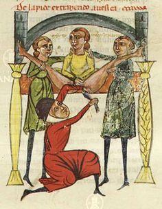 Stone Extraction (Lithotomy) Chirurgia, c. XIII century, Ms.1382m f. 25r, Biblioteca Casanatense Roma. http://opac.casanatense.it/Record.htm?Record=19919881124917370639