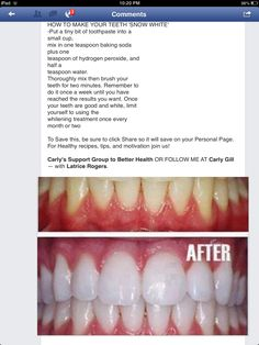 Diy teeth whitening!!
