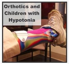 Orthotics and Children with Hypotonia - pinned by @PediaStaff – Please Visit  ht.ly/63sNt for all our pediatric therapy pins