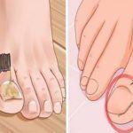 Ifunghi delle unghie, conosciuti come onicomicosi, sono una malattia tanto comune e diffusa quanto esteticamente scomoda. Il sintomo più comune è un aumento dello spessore delle unghie, accompagnato da un cambiamento del loro colore (bianco, nero,