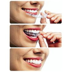 Invisalign vs. Braces Invisible - Visible Removable - Not Removable Comfortable - Irritating Few Visits - Frequent Visits Quick Appointments - Lengthy Appts Easy Eating - Many Food Restrictions Easy Oral Hygiene - Difficult Oral Hygiene #invisalign #braces #smilemakeover #dentalcontouring #toothreshaping #lumineers #veneers #hollywoodsmile #dentalwork #dentalclinic #clinic #dentist #orthodontics #orthodontist #generaldentistry #cosmeticdentistry #dentistry #teethmakeover #teethwhitening…
