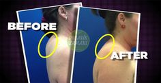 """New procedure that gets rid of the """"buffalo hump"""" Fitness Quotes, Fitness Goals, Fitness Tips, Fitness Motivation, Health Fitness, Fitness Exercises, Gain Muscle, Build Muscle, Brown Hair With Caramel Highlights"""