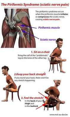 The piriformis syndrome is a condition that occurs when the piriformis muscle irritates or compresses the sciatic nerve causing sciatic nerver pain. Here's how to stretch the piriformis muscle (including video) to get sciatic nerve pain relief. Sciatica Stretches, Sciatica Pain Relief, Sciatic Pain, Muscle Pain Relief, Sciatic Nerve Exercises, Sciatica Pillow, Low Back Pain Relief, Flexibility Stretches, Fitness Workouts