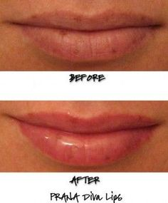 I'm on a hunt for a lip plumper that actually works. Natural Lip Plumper, Natural Lips, Lip Augmentation, Physicians Formula, Beautiful Lips, Lip Plumpers, Elf, Health Care, Check