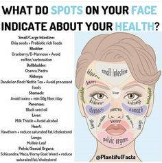 Doterra Acne, Acupressure Treatment, Acupressure Points, Face Mapping, Hormonal Acne, Body Organs, How To Get Rid Of Acne, Tips Belleza, Natural Health