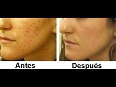 Remedios naturales para eliminar las cicatrices del cuerpo - Salud Sana