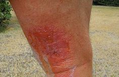How to Get Rid of Poison Ivy Rashes in 8 Steps