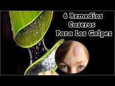 6 Remedios Caseros Para Los Golpes, Remedios Caseros Para Desinflamar Golpes, Desinflamar Golpes - YouTube