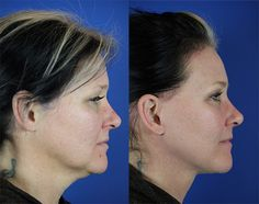 Camille – Youthful Reflections Brow Lift Facelift / Reflection Lift Fractional Co2 Laser Skin Resurfacing