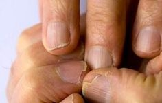 Psoriasis home remedies can help relieve the chronic skin condition. Learn how to prevent outbreaks and soothe their effects with home remedies. Home Remedies, Natural Remedies, Chocolate Face Mask, Brittle Nails, Fungal Infection, Tips Belleza, Natural Medicine, Red Nails, Coffin Nails