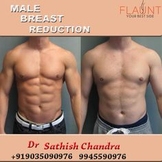 Male breast reduction. Please visit us- www.cosmeticsurgerymangalore.com