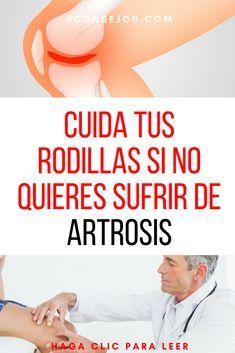 Artrosis rodilla remedios