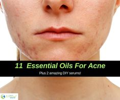 These are the best essential oils for acne and we also give you two free DIY recipes for at-home face serums to clear and control acne! Frankincense Essential Oil Uses, Essential Oils For Face, Essential Oils For Headaches, Lemongrass Essential Oil, Essential Oil Diffuser Blends, Cellulite Oil, Black Pepper Essential Oil, Acne Oil, Face Serum