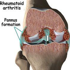 10 BEST HERBAL MEDICINES FOR RHEUMATOID ARTHRITIS