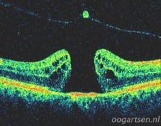 OCT beeld: een macula gat