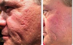 Men love it too! Not to late to reduce damage from acne. More Real Results with NeriumAD! All our pictures are supplied by the customer, none of these are retouched or submitted by Nerium the company. You are seeing REAL RESULTS. www.sproctor.nerium.com