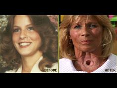 CDC Terri Hall Dies 53 yrs The Graphic Anti Smoking Advocate Helped Mill...