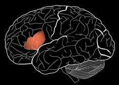 """""""French physician Pierre Paul Broca found patients with damage to part of brain's frontal lobe were unable to speak more than a few words. Dubbed Broca's area, region is believed to be critical for speech production and some aspects of language comprehension. . .Broca's area actually consists of 2 distinct subunits. One of these focuses selectively on language processing, the other is part of a brainwide network that appears to act as a central processing unit for general cognitive…"""